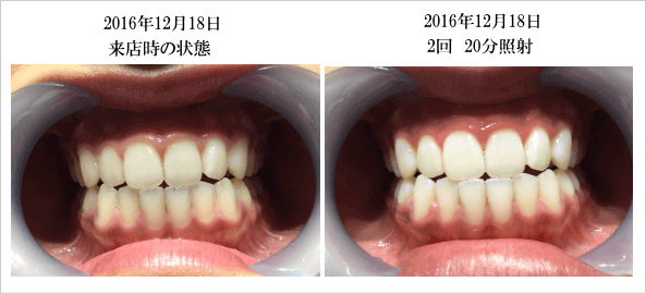 ビフォアーアフター,歯のホワイトニング,ホワイトニングバー