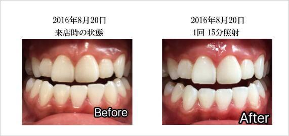 ホワイトニング,ホワイトニングバー,歯のホワイトニング,比較