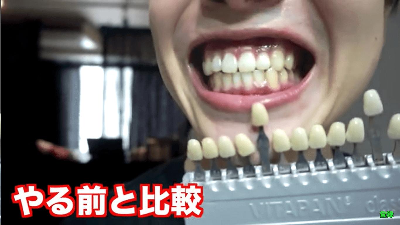 YouTuberMASUOさんのホワイトニングバー体験