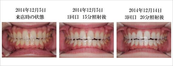 ホワイトニングバーでの歯のホワイトニングのビフォアアフター