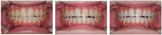歯のホワイトニングビフォアーアフター