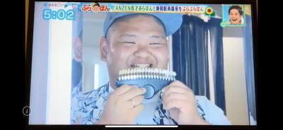 ホワイトニングバー静岡店TV取材ANZEN漫才あらぽん歯の色チェック