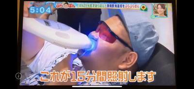ホワイトニングバー静岡店TV取材LED照射