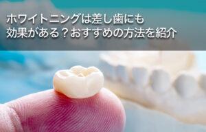 ホワイトニングは差し歯にも効果がある?おすすめの方法を紹介