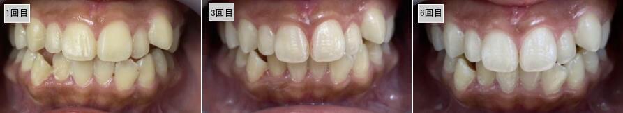 歯のホワイトニングのビフォアーアフター