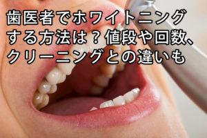 歯医者でホワイトニングする方法は?値段や回数、クリーニングとの違いも